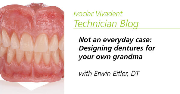 Popular post - Not an everyday case: Designing dentures for your own grandma