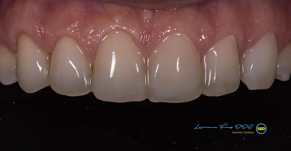 Esthetic Bonding of Direct Composite | Case Study